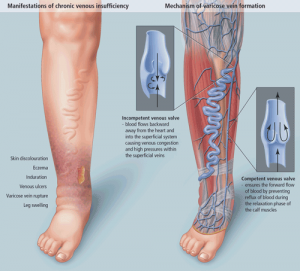NYVTC-new-york-ny-what-causes-varicose-veins-spider-vein-center.png